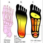 Areas of Pain with Plantar Fasciitis